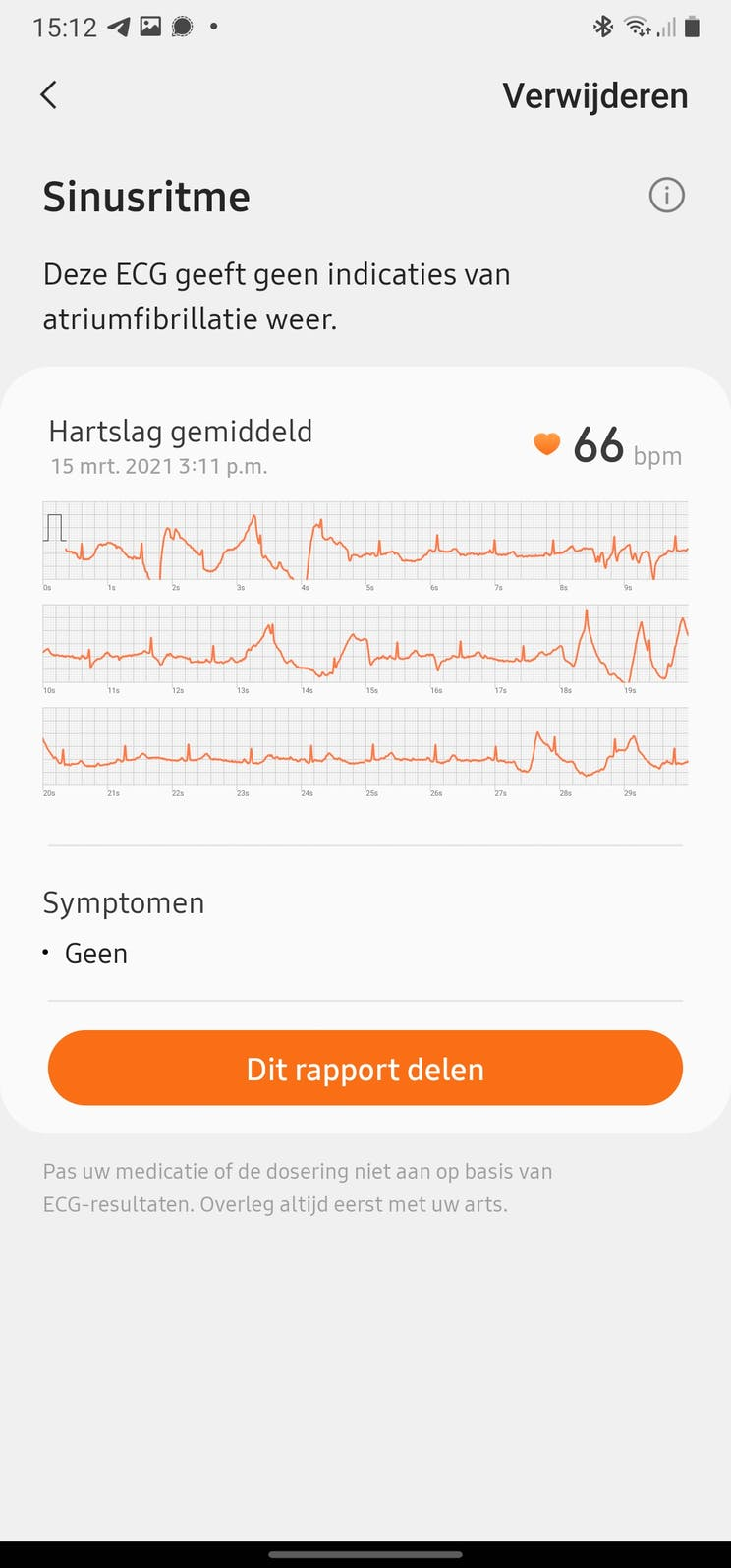Samsung Galaxy Watch 3 measures ECG and blood pressure, this is how you set the functions